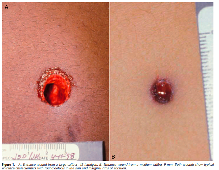 GSW wound interpretation from a pathology treatise